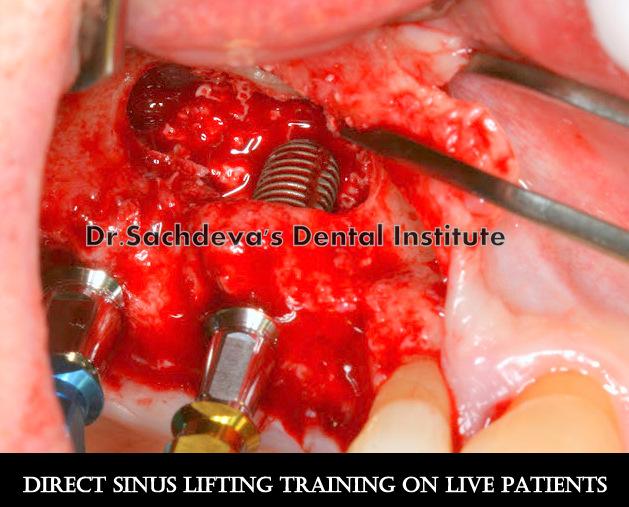 Sinuslift twee replus implantaten 009