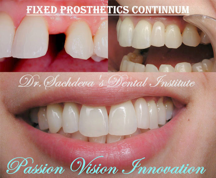 dental-implants-before-and-after-021