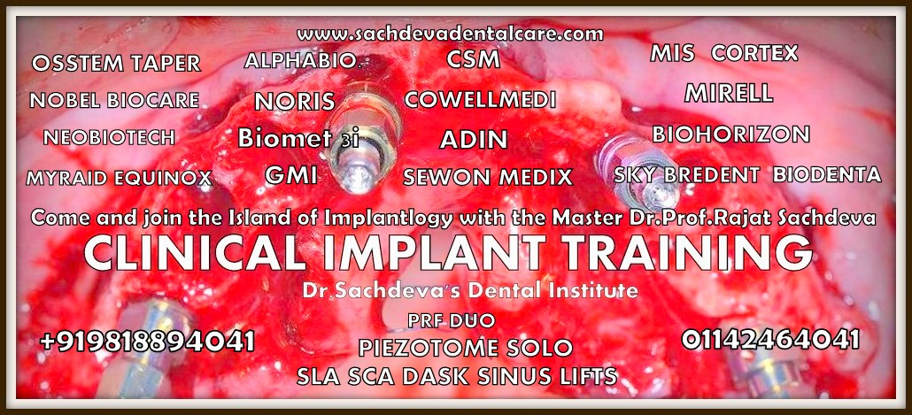 live implants training delhi (13)1