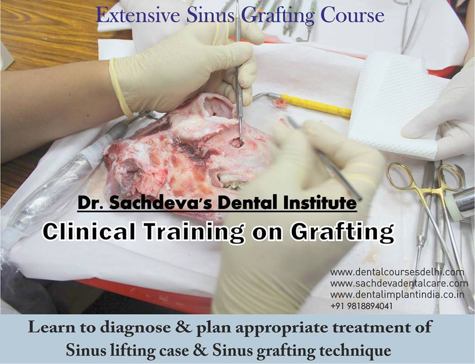sinus-grafting-4